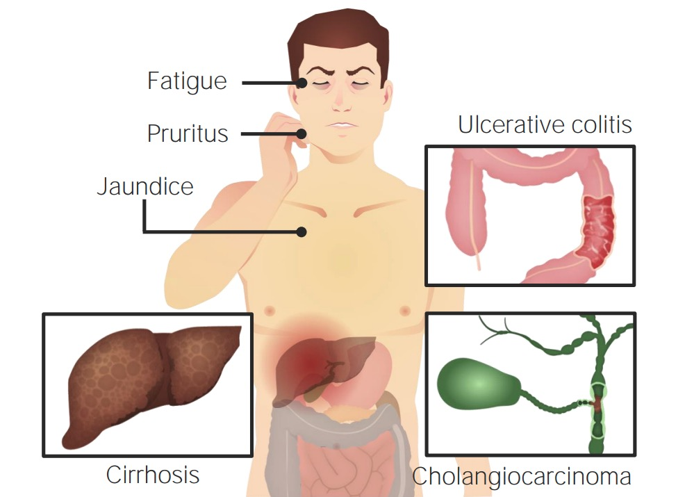 PSC symptoms and related diseases