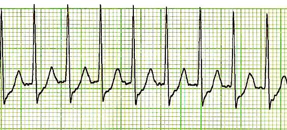 PSVT: Paroxysmal Supraventricular Tachycardias, ECG