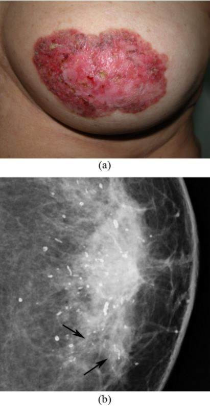 Paget's disease of the breast