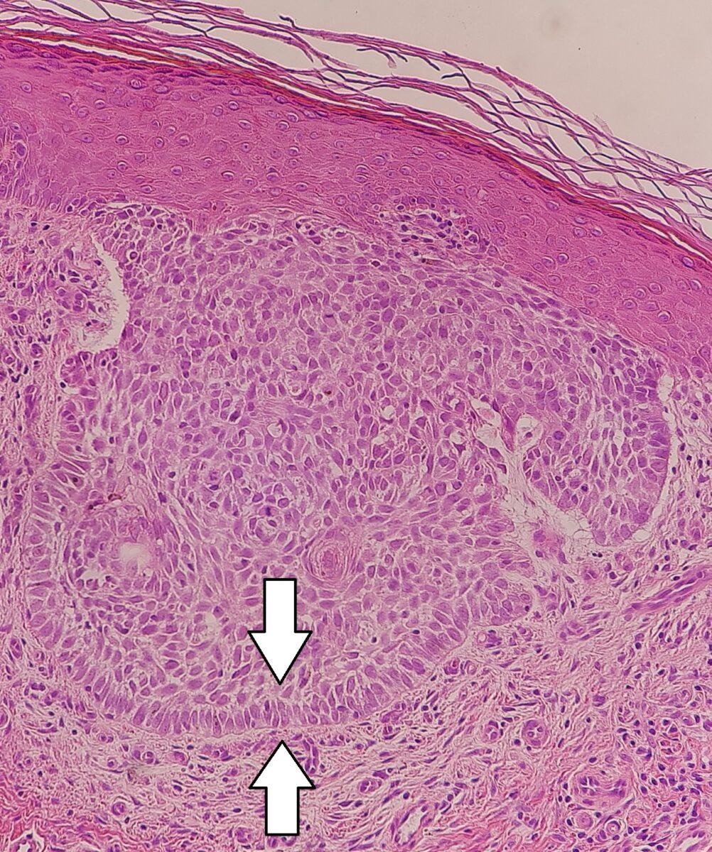 Palisading of keratinocytes in nodular basal cell cancer