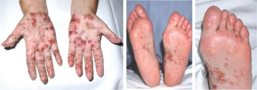 palmoplantar psoriasis medscape