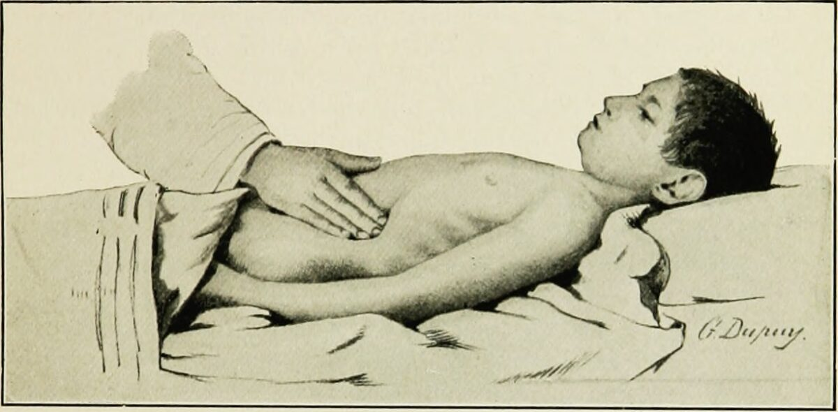Palpating the spleen