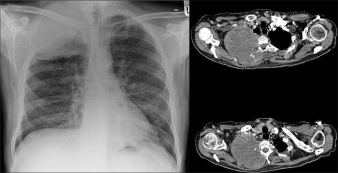 Pancoast tumor CT