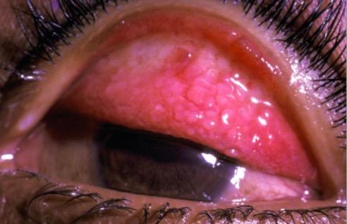 Papillae on the everted upper eyelid in vernal keraconjunctivitis