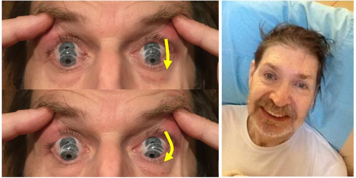 Parkinsonian syndrome - round the houses sign
