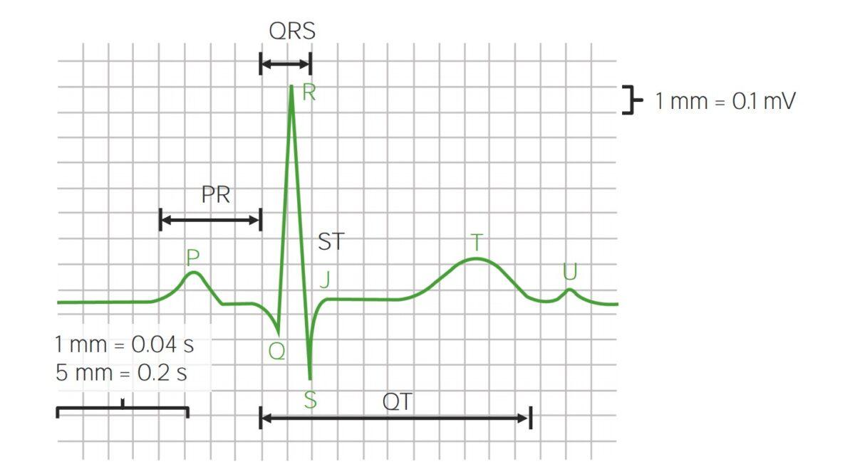 Parts of ECG waveforms and intervals