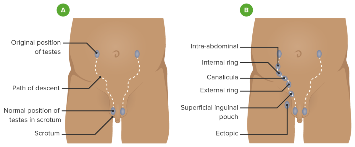 Path of descent of the testis