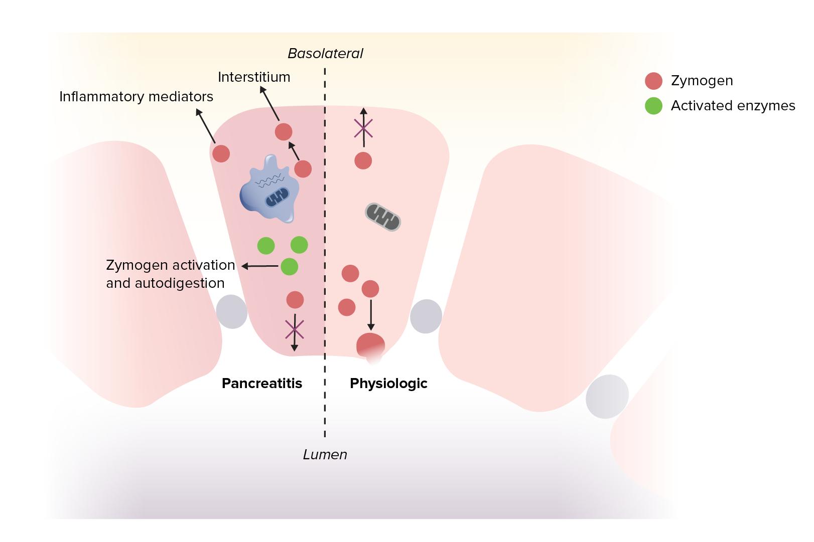 Pathogenesis Acute pancreatitis