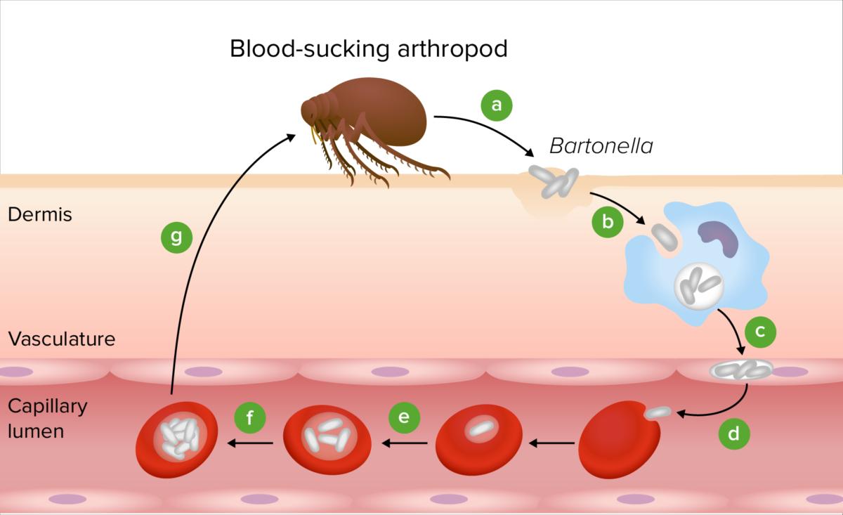 Pathogenesis of Bartonella