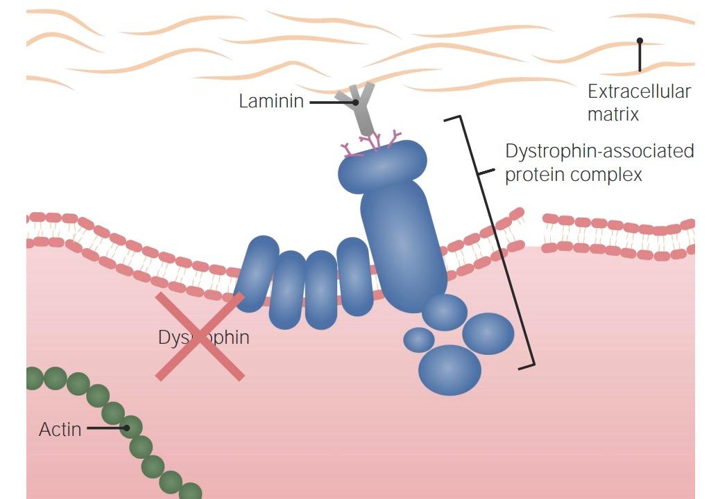 Pathogenesis of Duchenne