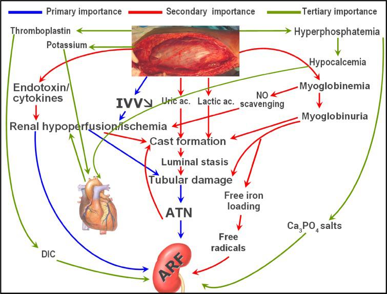 Pathogenesis of crush syndrome-related acute kidney injury