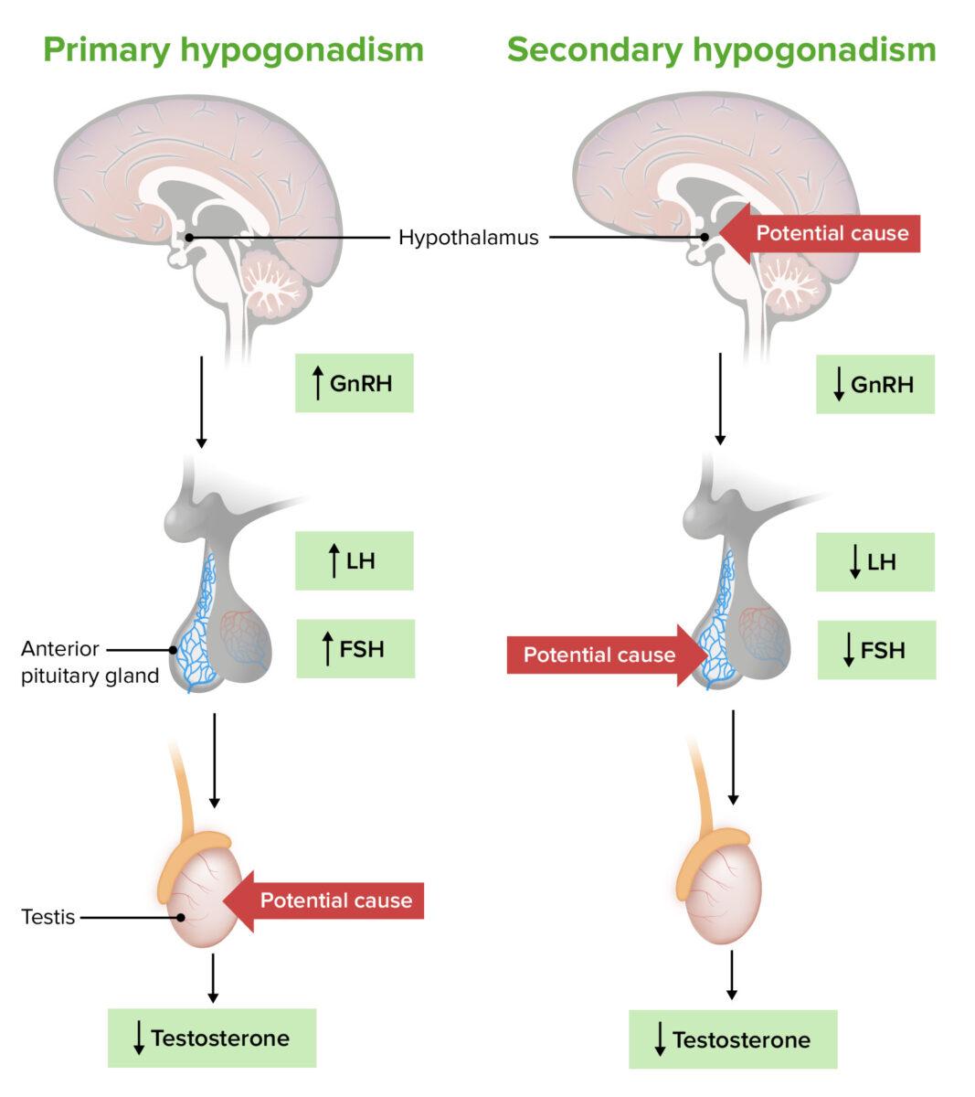 Pathogenesis of primary versus secondary hypogonadism