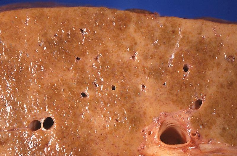 Pathology of alcoholic liver cirrhosis