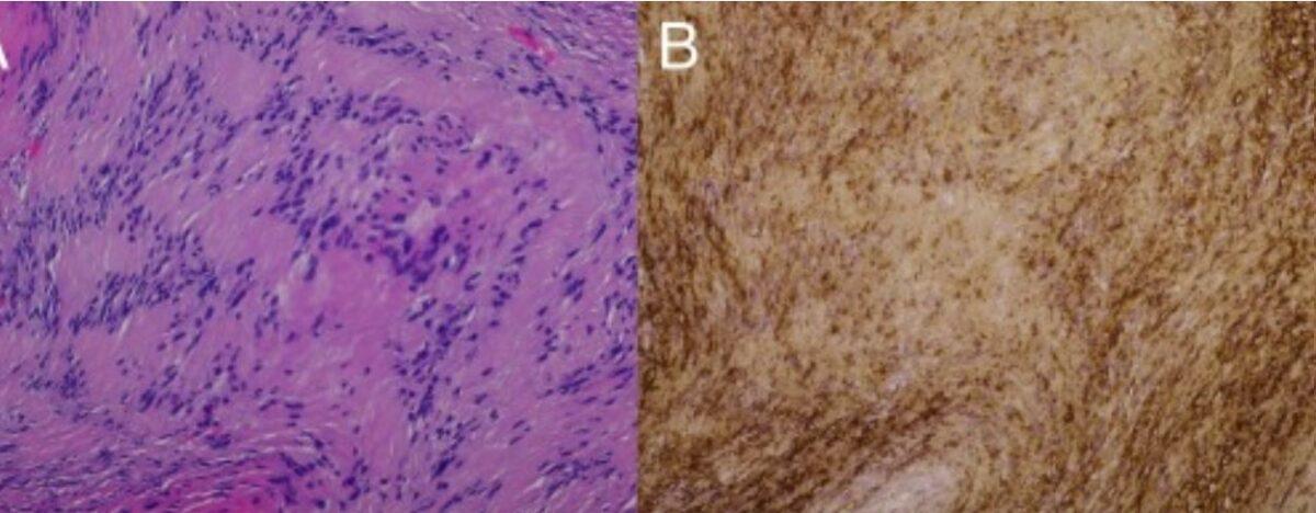 Pathology slides demonstrating schwannoma
