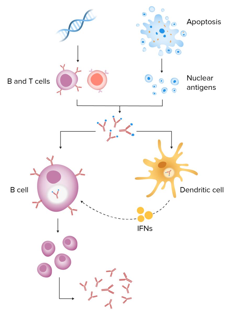 Pathophys of SLE