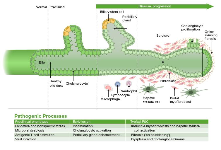 Pathophysio of Primary sclerosing cholangitis