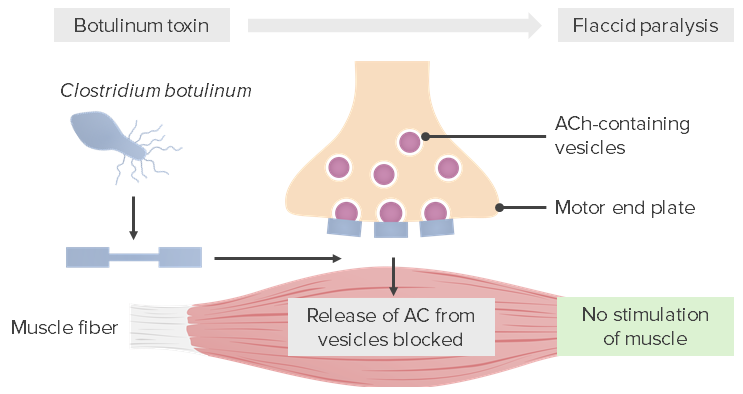 Pathophysiological mechanism caused by Clostridium botulinum