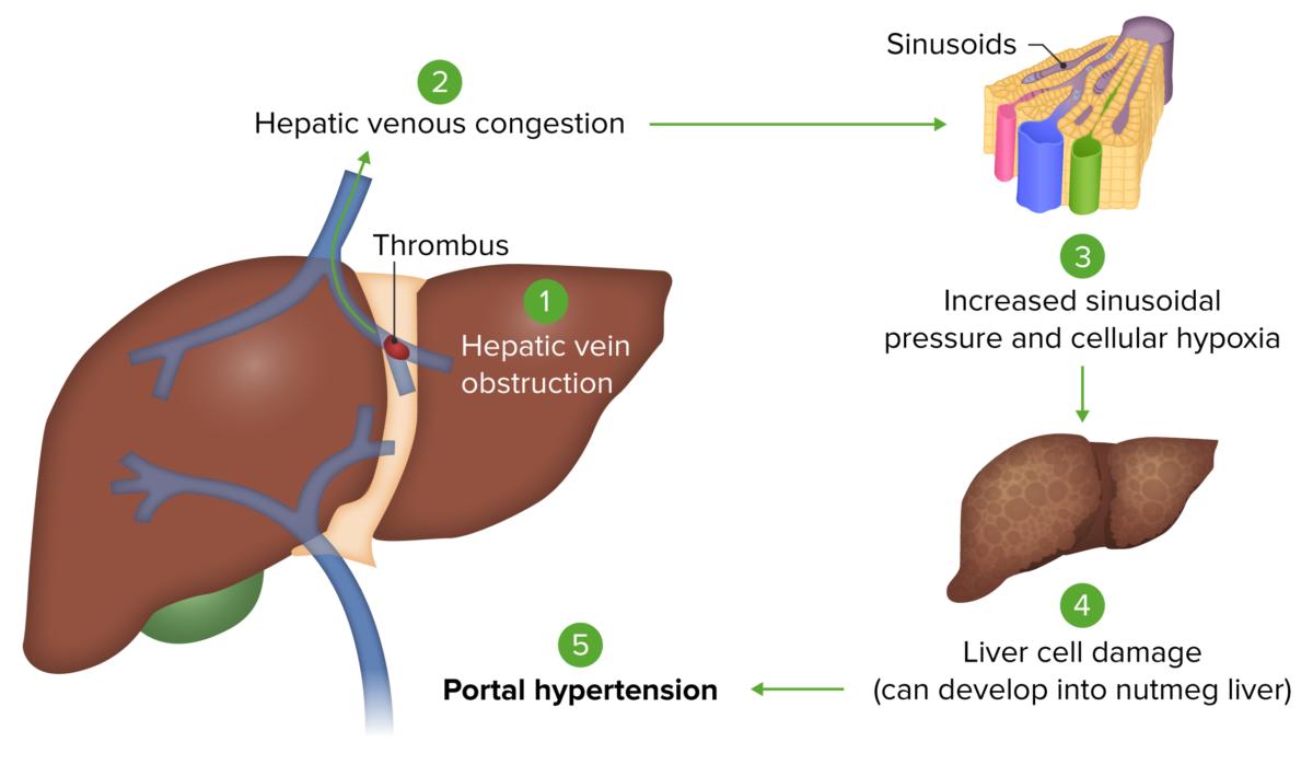 Pathophysiology Budd-Chiari syndrome