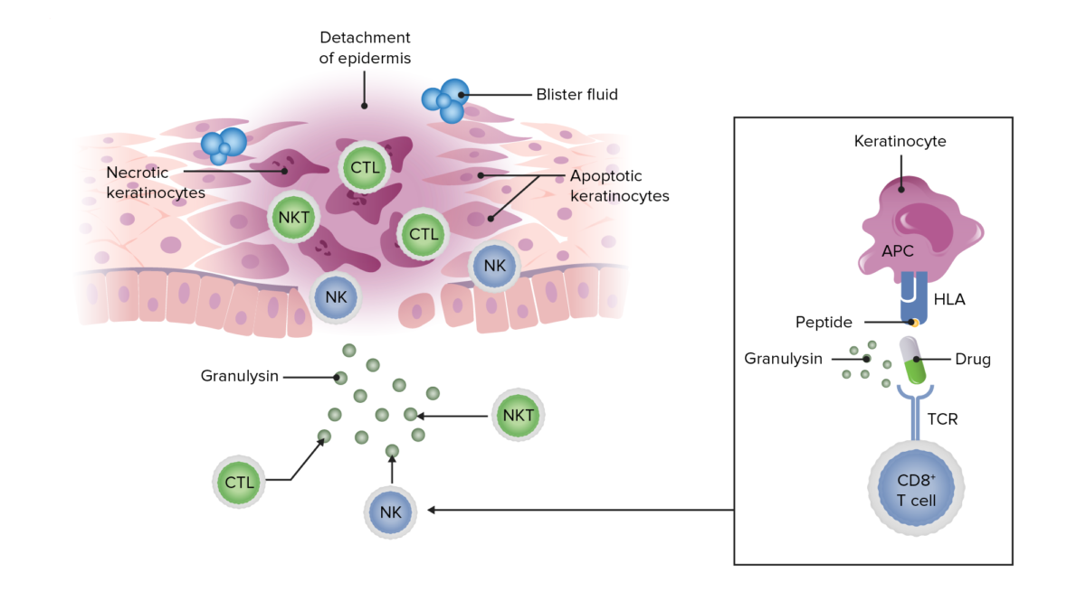 Pathophysiology in Stevens-Johnson syndrome and toxic epidermal necrolysis