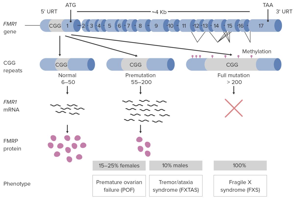 Pathophysiology of Fragile X syndrome diagram