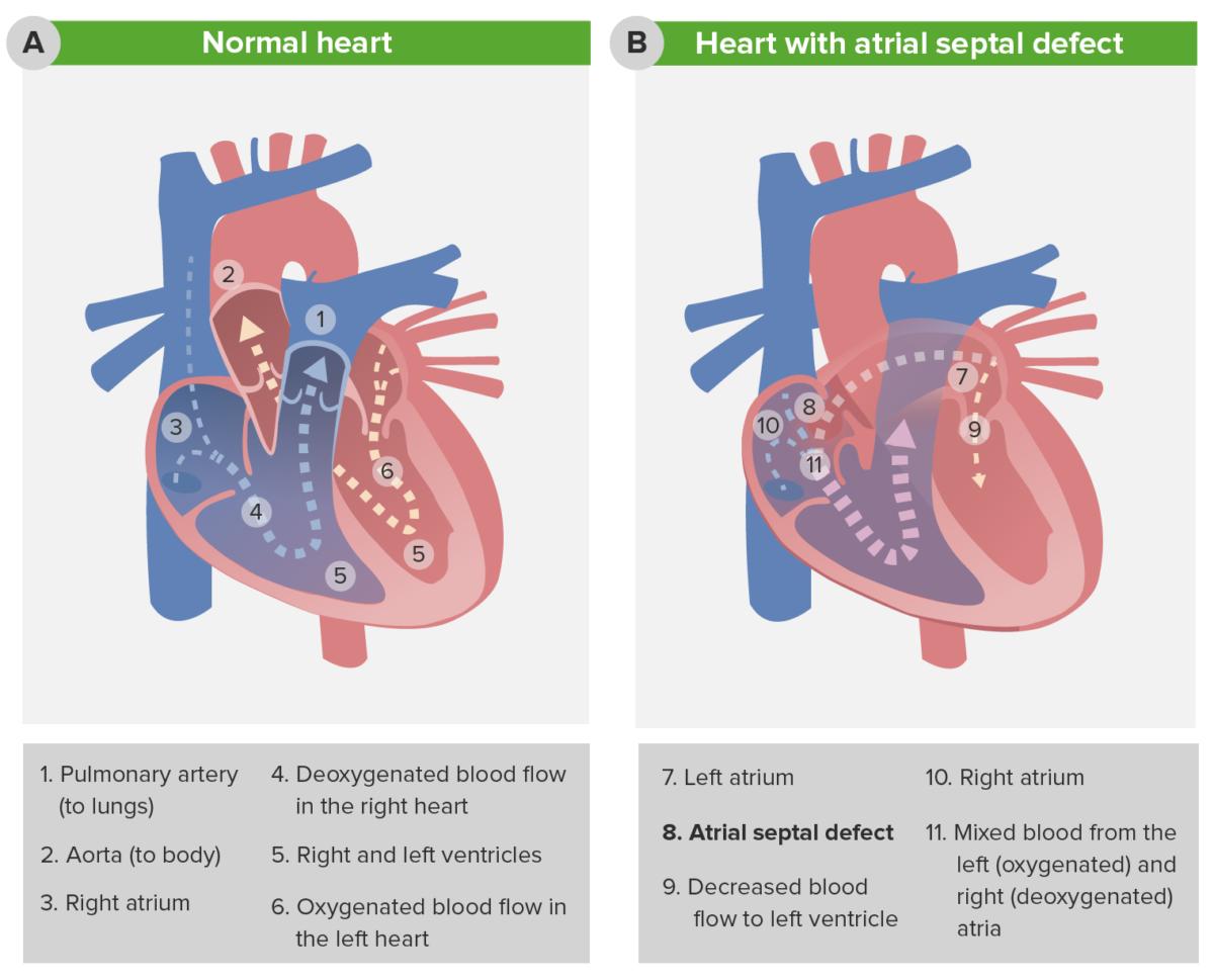 Pathophysiology of atrial septal defect (ASD)