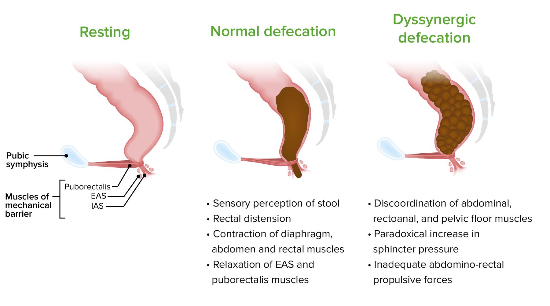 Pathophysiology of dyssynergic defecation