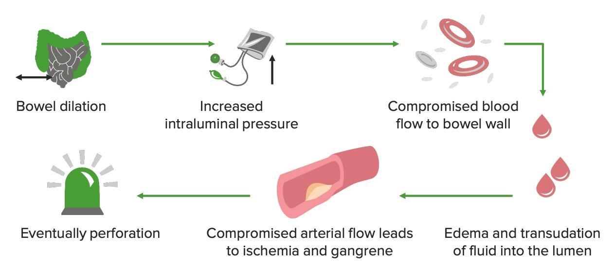 Pathophysiology of large bowel obstruction