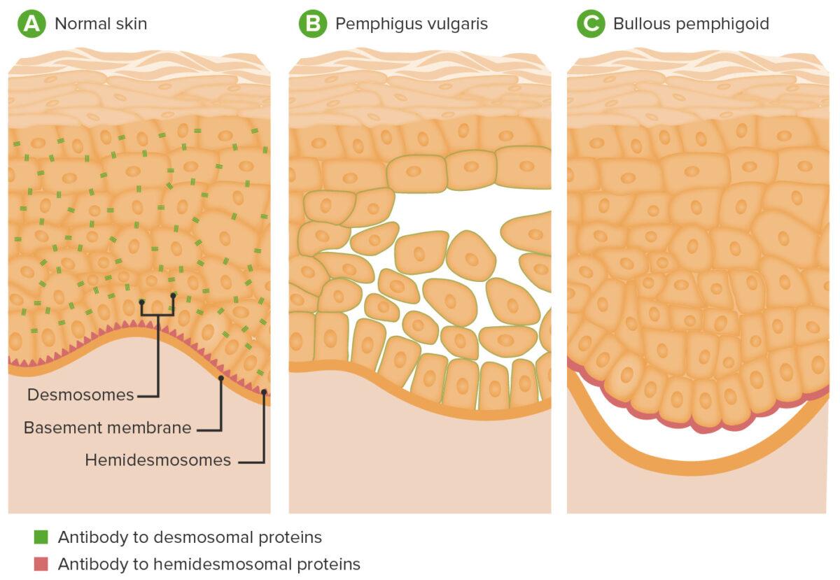 Pathophysiology of pemphigus vulgaris and bullous pemphigoid