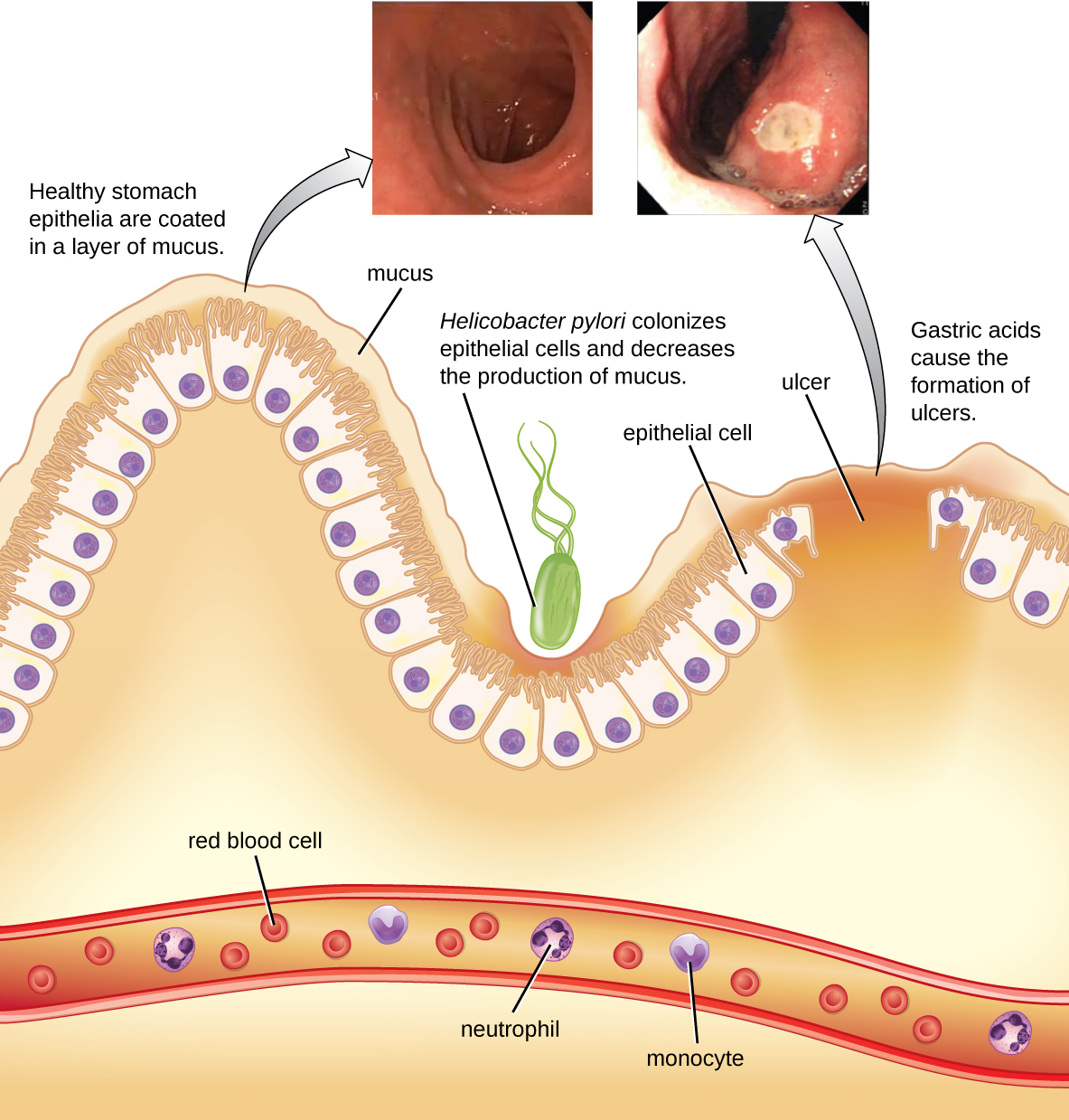 Pathophysiology of peptic ulcer disease