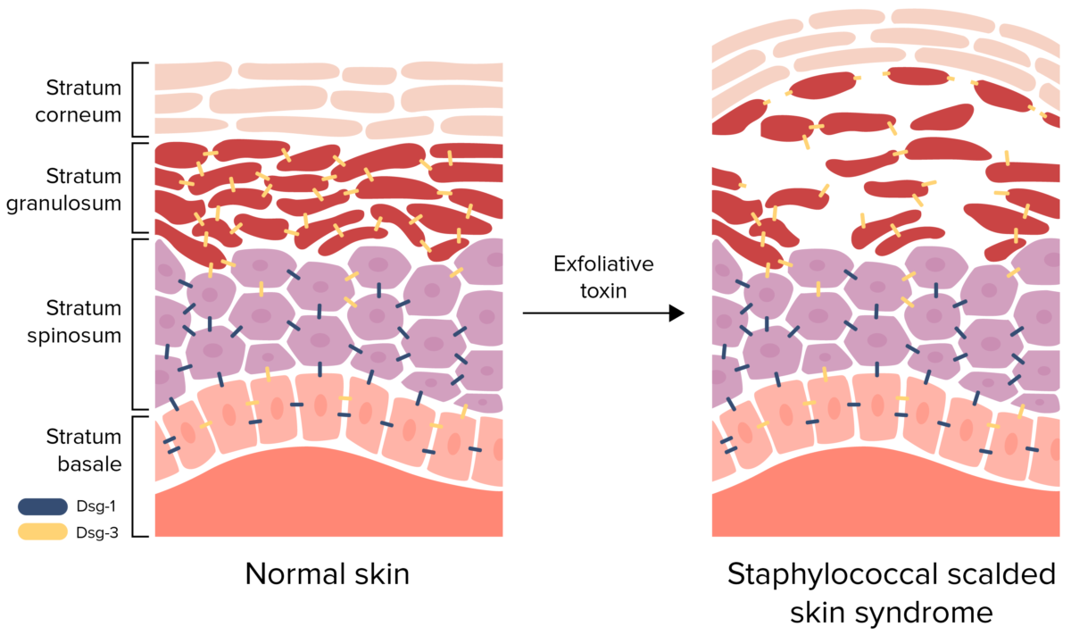 Pathophysiology of staphylococcal scalded skin syndrome