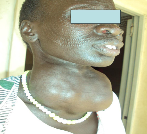 Patient from South Sudan with a goiter