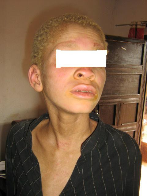 Patient with albinism