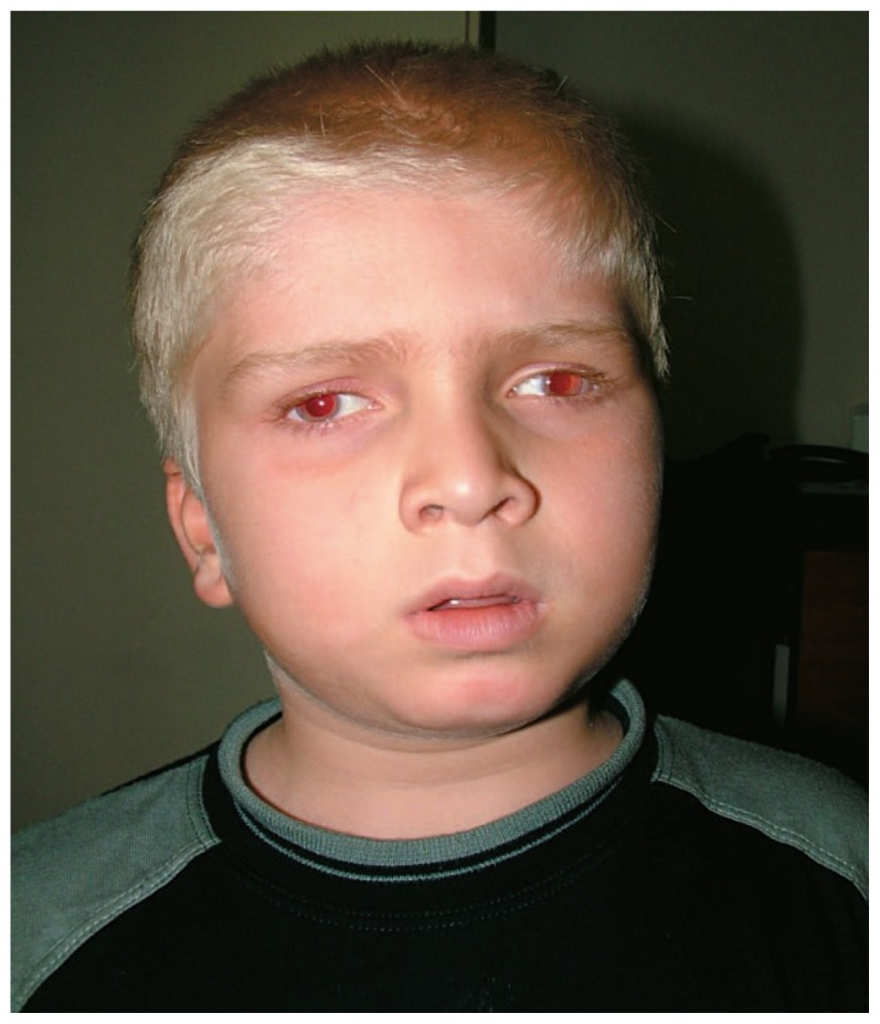 Patient with oculocutaneous albinism