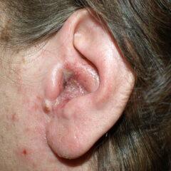 Patient with otitis externa