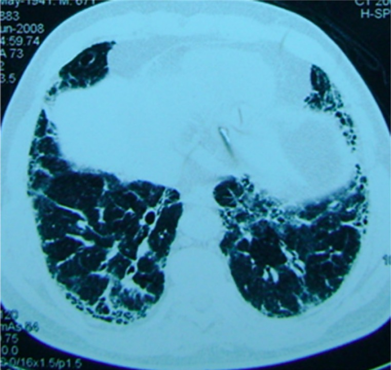 Patient with pulmonary fibrosis