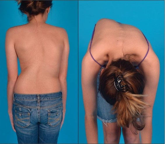 Patient with scoliosis performing the forward bending test