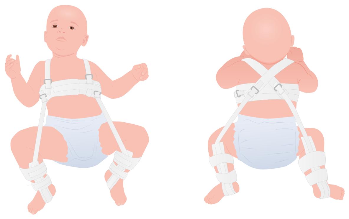 Pavlik harness
