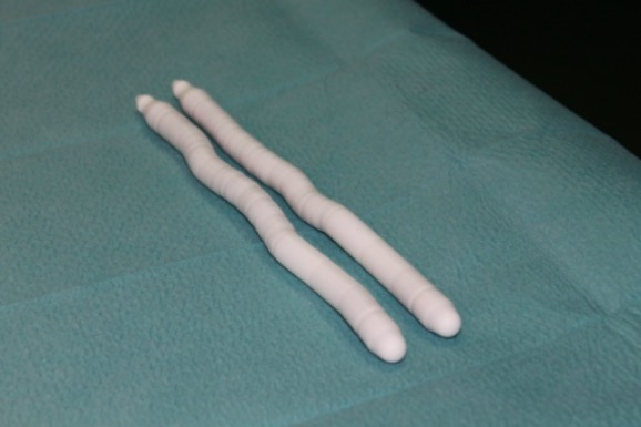 Penile prosthesis in the surgical treatment of Peyronie's disease