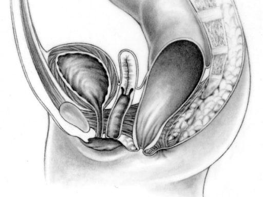 Perineal fistula