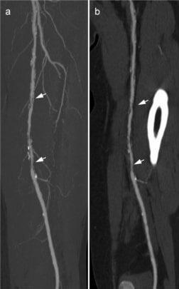 Peripheral artery disease imaging