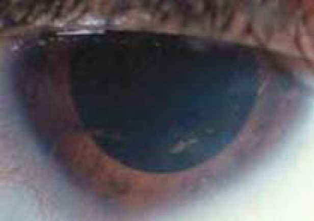 Peripheral scleral changes seen in a patient with sclerocornea