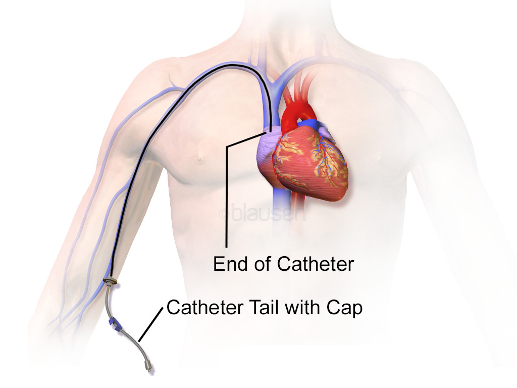 Peripherally inserted central venous catheter