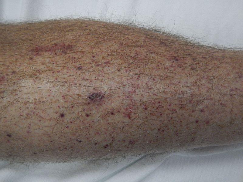 Petechiae on lower leg