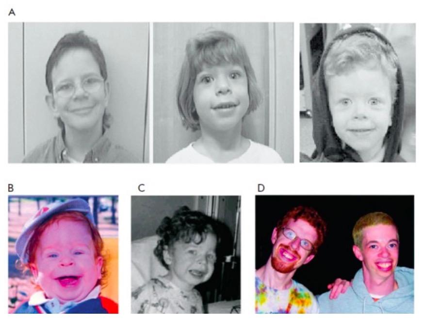 Phenotype of Williams syndrome