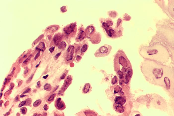 Photomicrograph Biopsied esophageal ulcer active herpes simplex virus