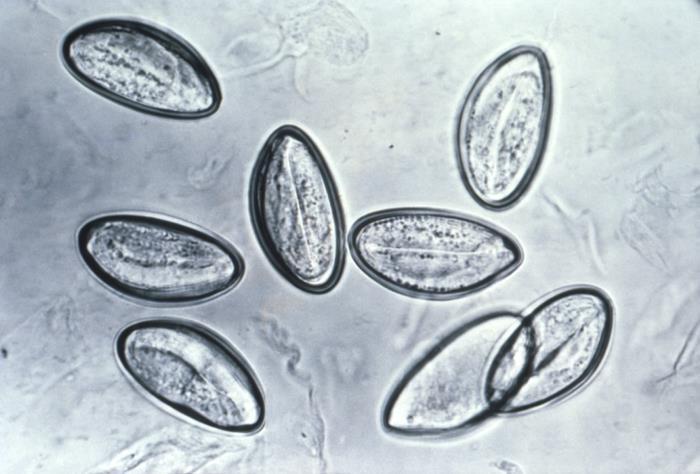 Photomicrograph Enterobius vermicularis eggs Enterobiasis