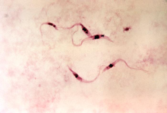 Photomicrograph of 5 Trypanosoma cruzi trypomastigotes