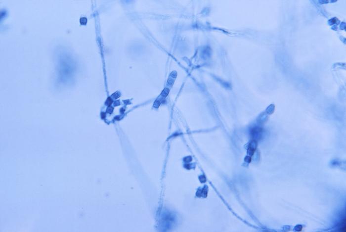 Photomicrograph hyphae Coccidioides immitis arthroconidia
