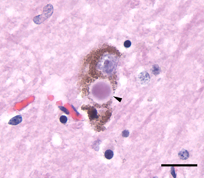 Photomicrograph of a Lewy body