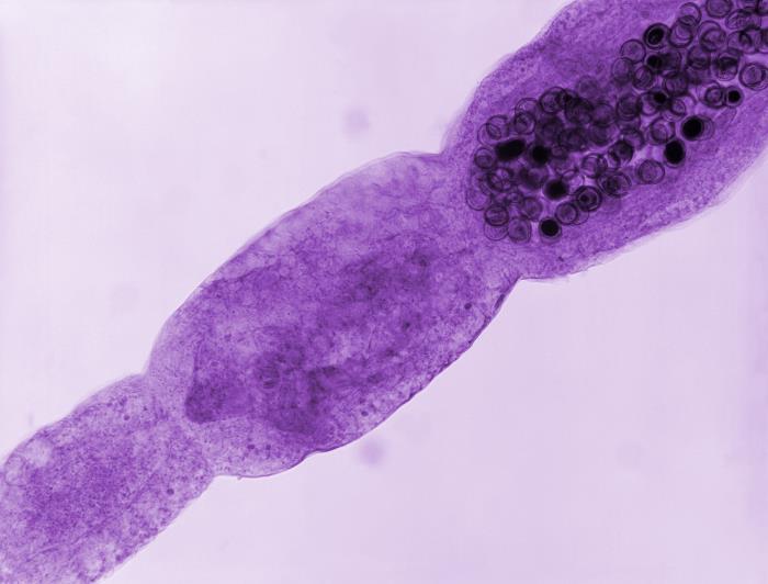 Photomicrograph of an Echinococcus multilocularis tapeworm Echinococcosis